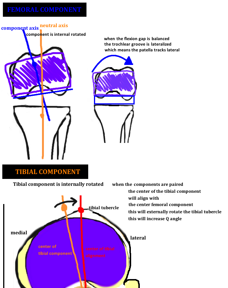 hight resolution of diagram showing internal rotation of the tibial component and internal rotation of the femoral component in