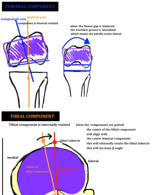 small resolution of diagram showing internal rotation of the tibial component and internal rotation of the femoral component in