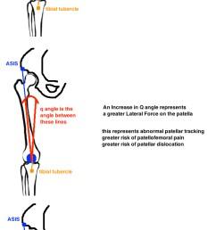 q angle diagram for total knee arthroplasty [ 667 x 1512 Pixel ]