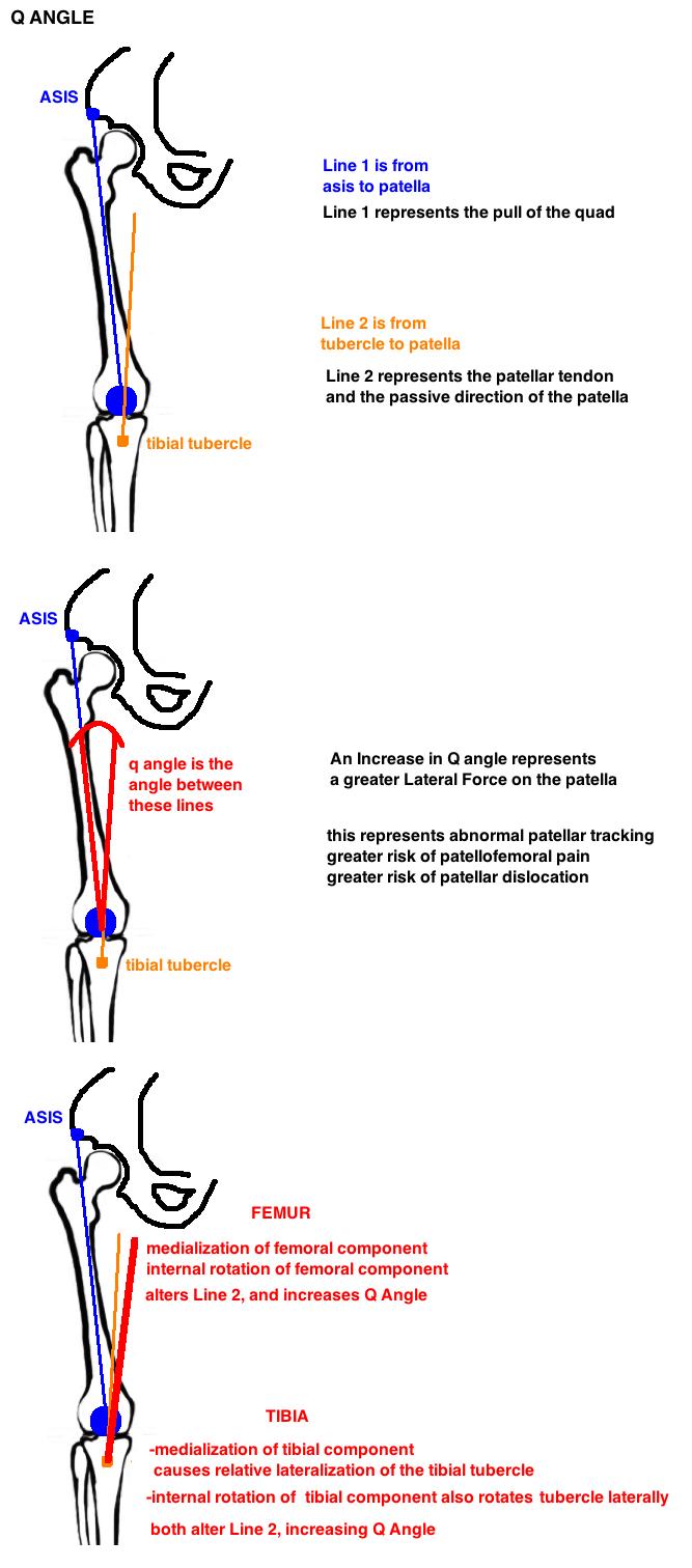 medium resolution of q angle diagram for total knee arthroplasty