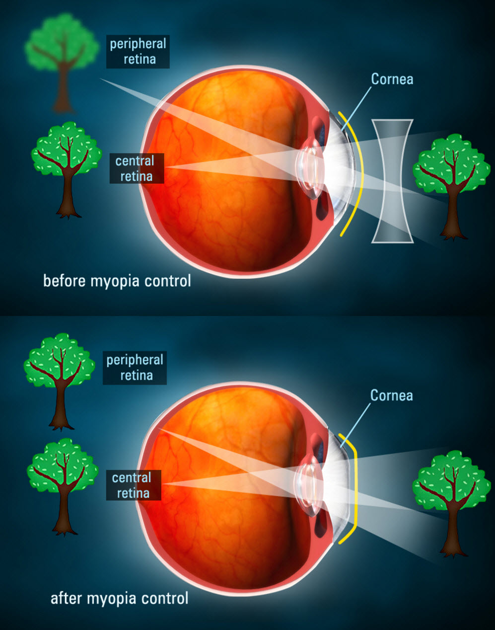 hight resolution of a graphic showing how ortho k lenses bottom change the path of light