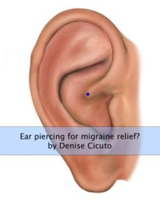 also ear piercing for migraine relief  cicuto acupuncture rh cicutoacupuncture