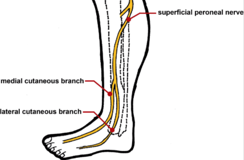 lower leg nerve diagram whelen hideaway strobe wiring superficial peroneal injury in a professional runner case the branches from common just below fibular head