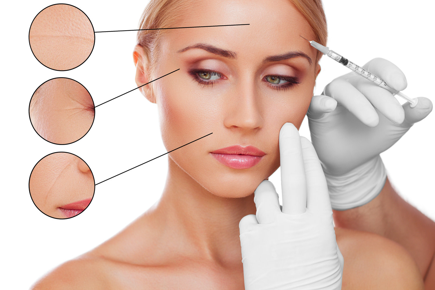 small resolution of botox fillers jpg