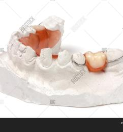 a plaster cast of teeth with removable partial denture isolated on white background  [ 1500 x 1120 Pixel ]