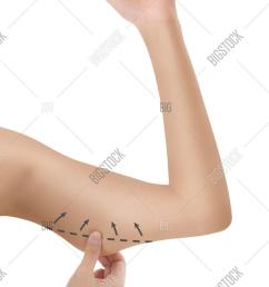 woman grabbing skin on her upper arm black the drawing arrows lose weight and liposuction cellulite [ 1001 x 1620 Pixel ]
