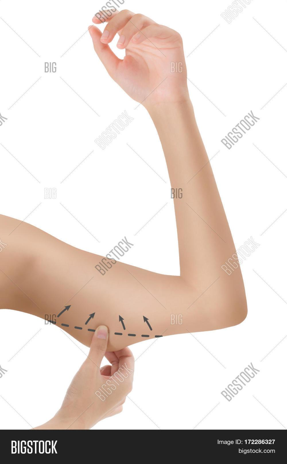 medium resolution of woman grabbing skin on her upper arm black the drawing arrows lose weight and liposuction cellulite