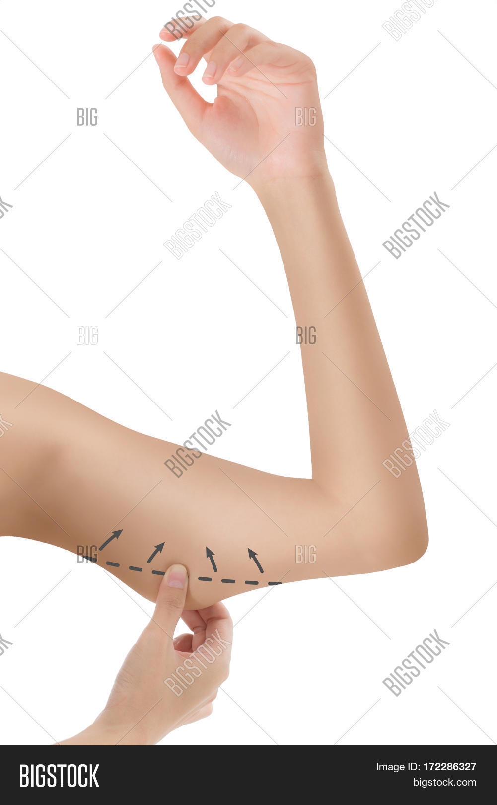 hight resolution of woman grabbing skin on her upper arm black the drawing arrows lose weight and liposuction cellulite