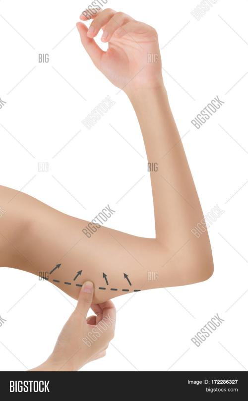 small resolution of woman grabbing skin on her upper arm black the drawing arrows lose weight and liposuction cellulite