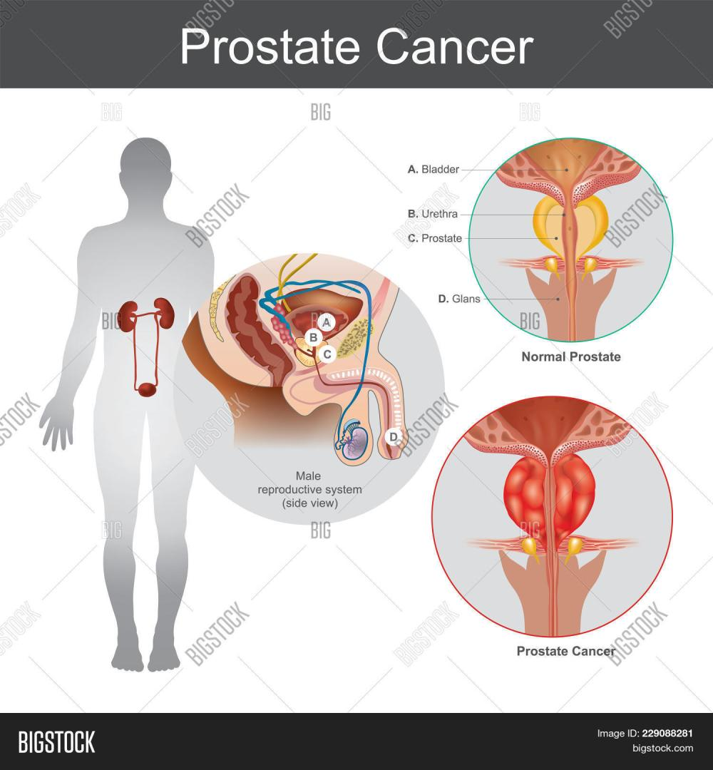 medium resolution of the prostate cancer is the most common cancer among men not skin cancer the prostate