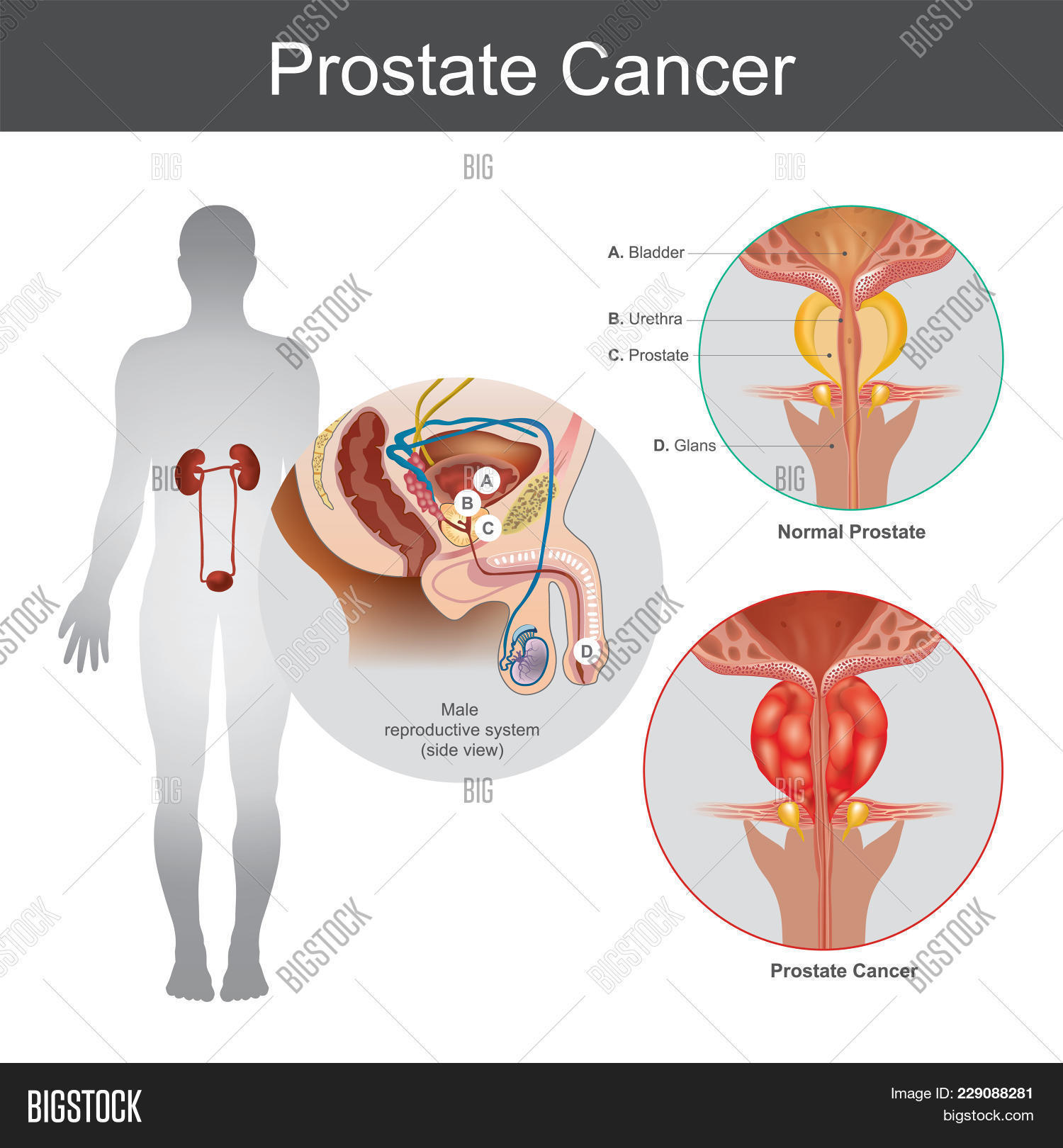 hight resolution of the prostate cancer is the most common cancer among men not skin cancer the prostate