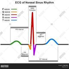 Heart Beat Diagram Winch Controller Wiring Ecg Normal Sinus Rhythm Infographic Image And Photo Bigstock