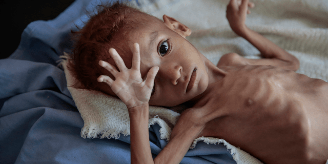 yemen children starving