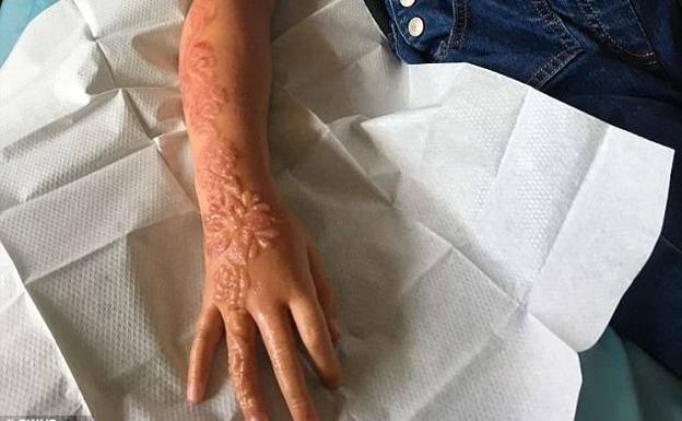 Un Tatuaje De Henna Destroza El Brazo A Una Niña De 7 Años Las