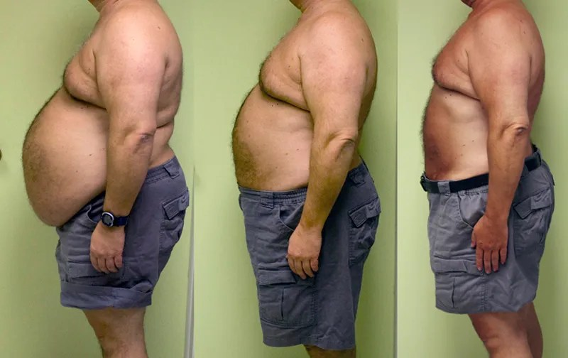 The Biggest Weight Loss Ever Recorded   TheRichest