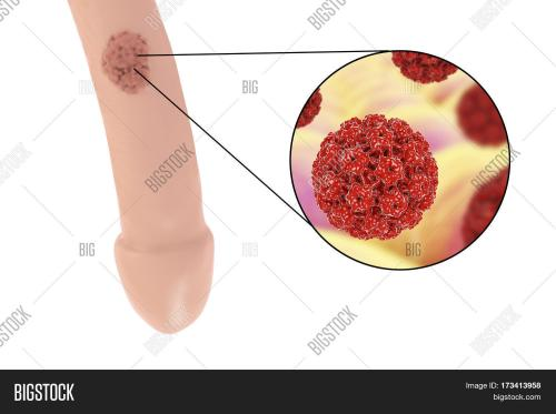small resolution of common locations of genital warts human papillomavirus hpv lesions in men and close