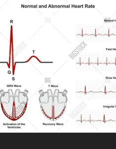 Normal and abnormal heart rate infographic diagram including activation of atria ventricle recovery wave also image  photo free trial bigstock rh bigstockphoto
