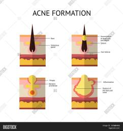 formation of skin acne or pimple the sebum in the clogged pore promotes the growth [ 1500 x 1620 Pixel ]