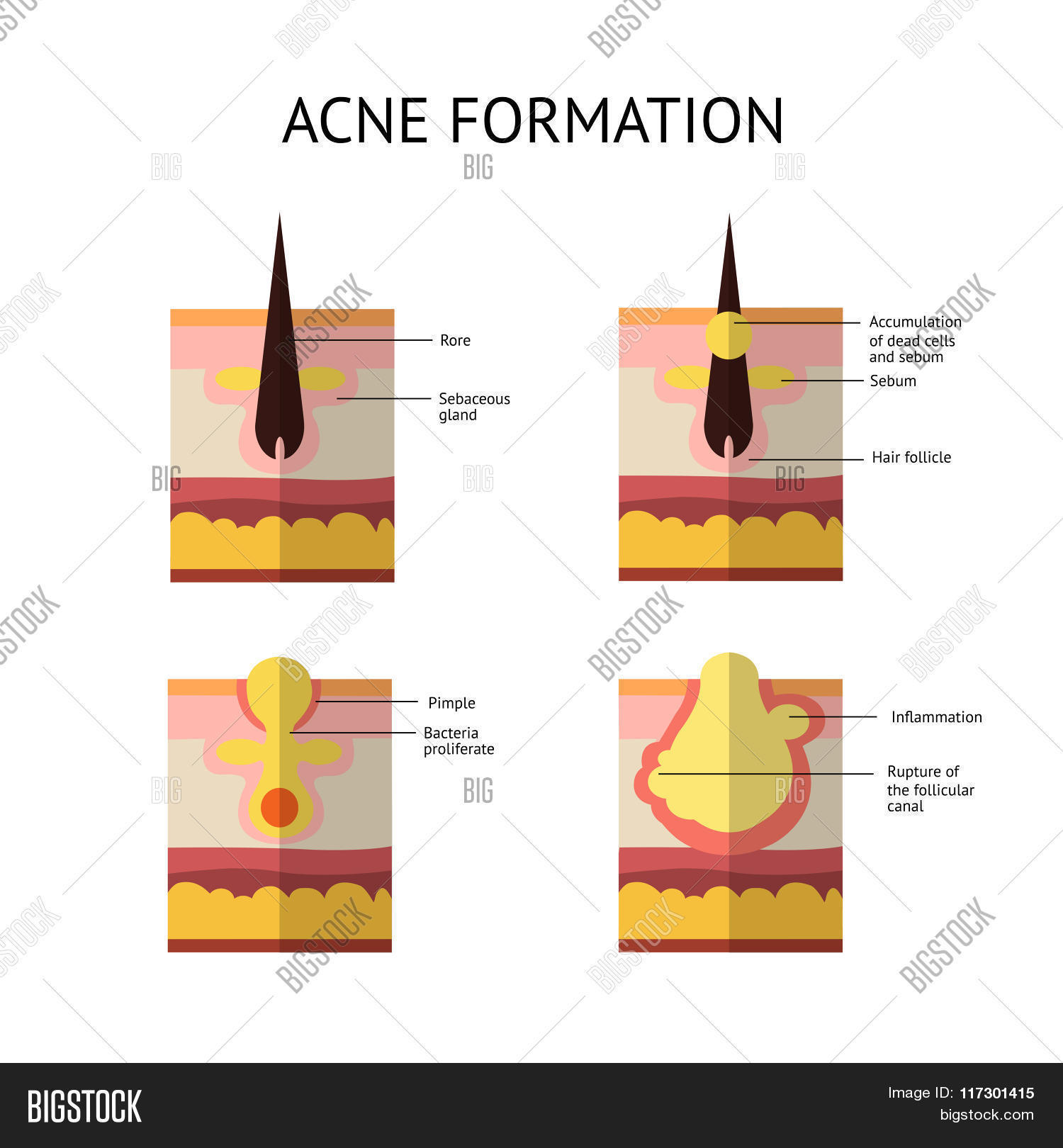 hight resolution of formation of skin acne or pimple the sebum in the clogged pore promotes the growth