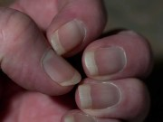 signs of disease in nails
