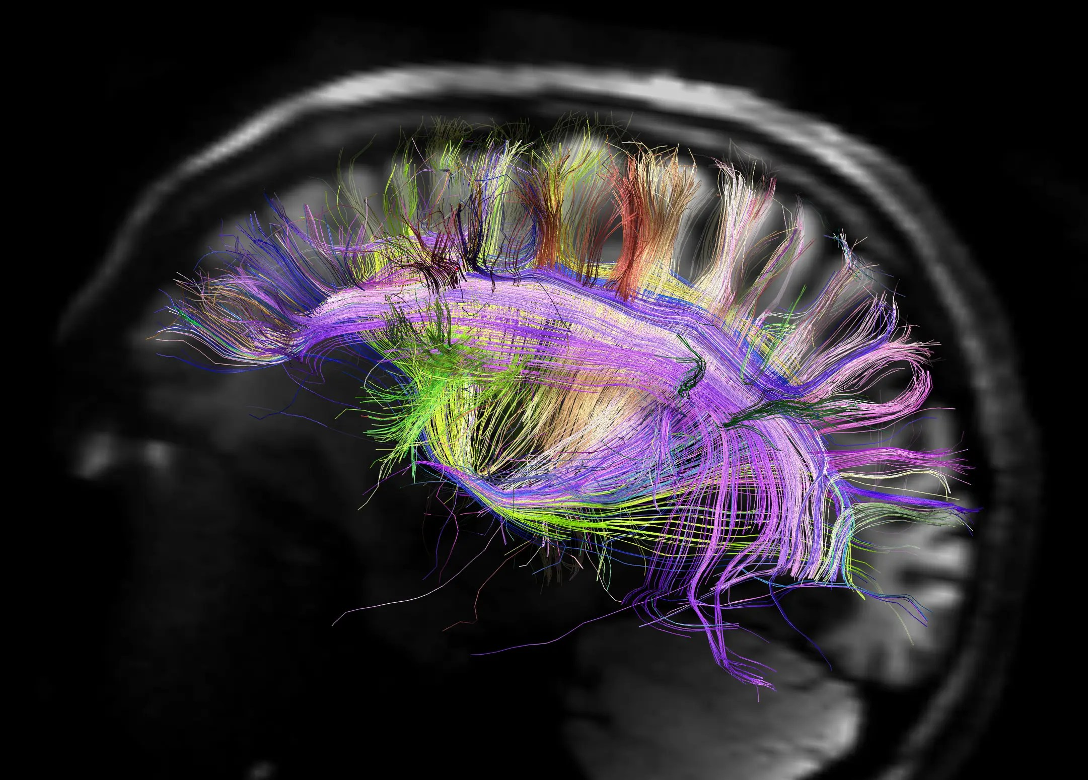 https://i0.wp.com/static4.businessinsider.com/image/508ede8eeab8ea2330000025/how-mapping-the-human-brain-will-help-us-understand-personality-and-mental-illness.jpg
