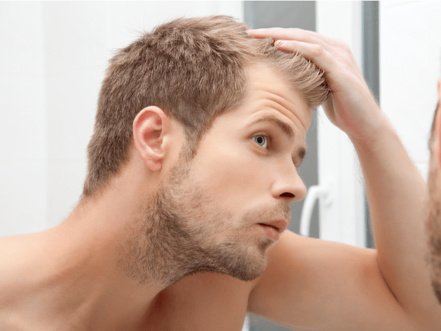 cause of baldness in men