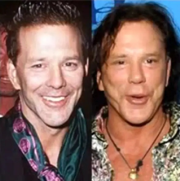"""Actor Mickey Rourke is one of the few actors to admit to having plastic surgery. He said he went to the """"wrong guy"""" to fix his boxing injuries back in the '90s."""