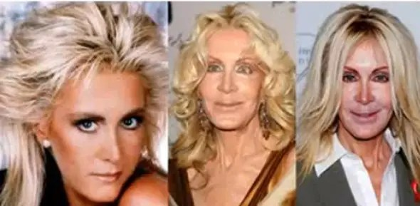 "Soap opera actress Joan Van Ark, best known from ""Dallas"" and ""Knot's Landing,"" shocked attendees of a charity event  she attended looking completely different."