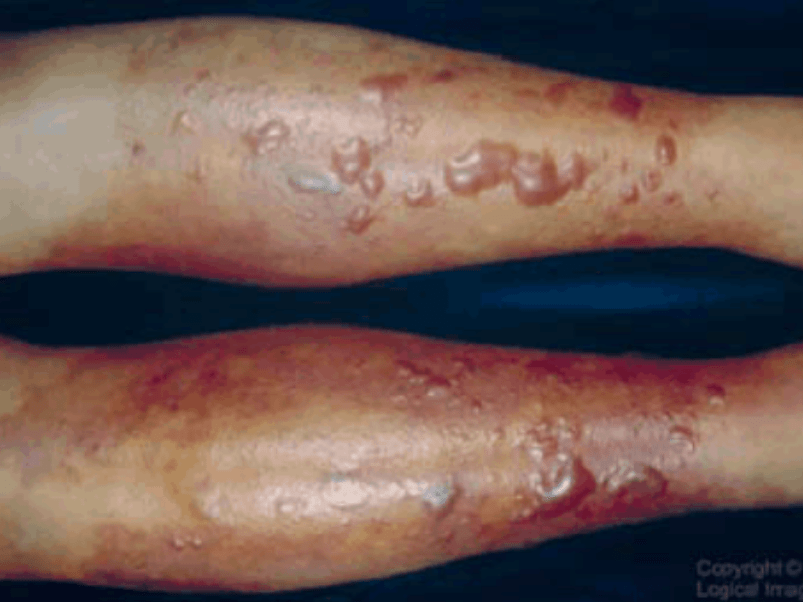 Woman dies of vibrio necrotizing fasciitis infection from ...
