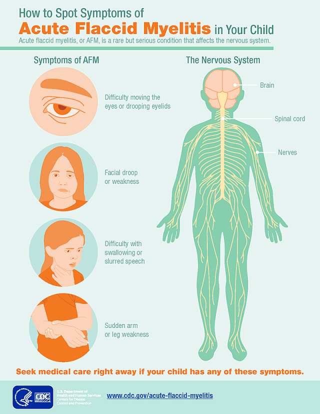 afm symptoms infographic