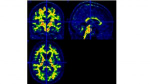 Imagen de PET del cerebro.