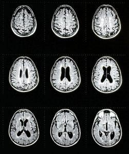 Imagen cerebral de esclerosis múltiple.