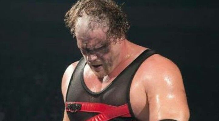 Undertaker scarred Kane's face