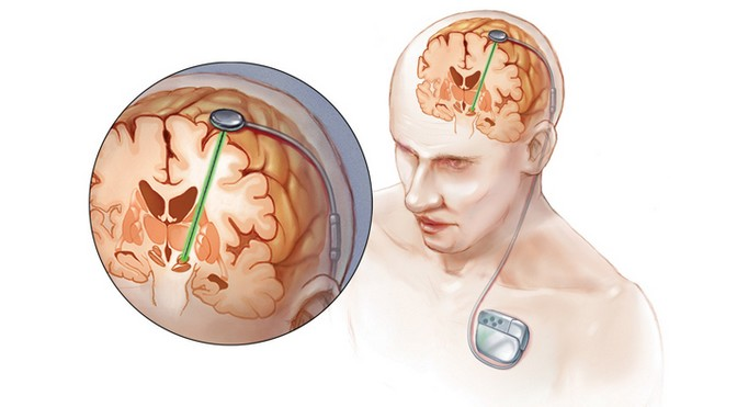 Deep-brain-stimulation.jpg