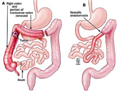 Hemicolectomie dreapta