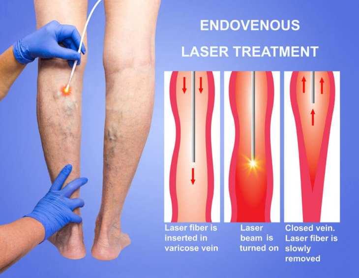 Laser endovenos