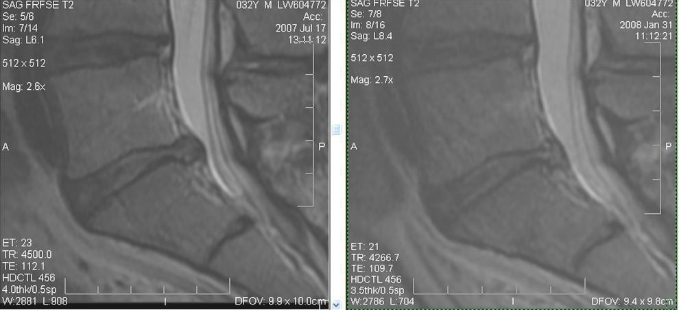 regenexx-lumbar-disc-info-patientonly-jpg