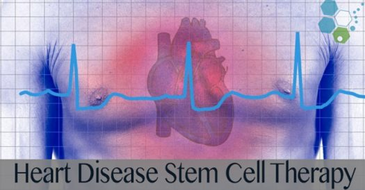 stem cell for heart disease