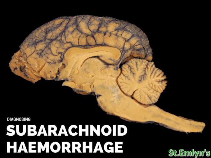 subarachnoid