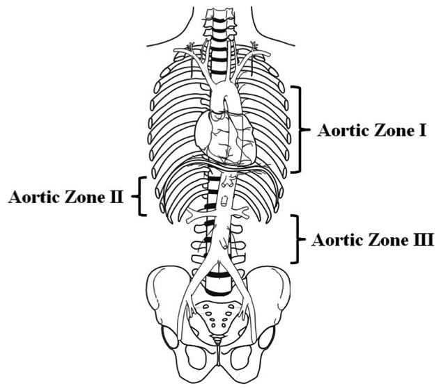 aortic-zones