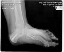 Left foot post op 2