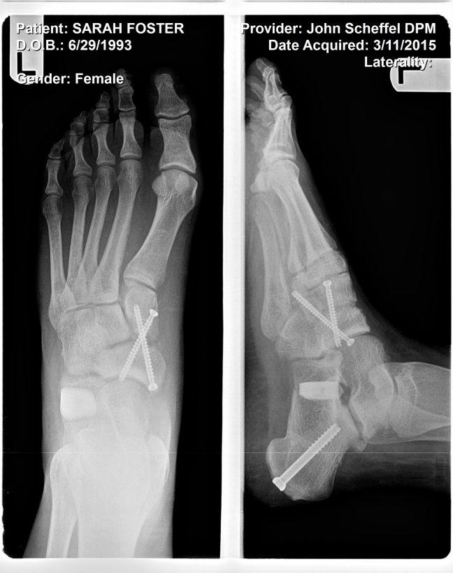 Left foot post op