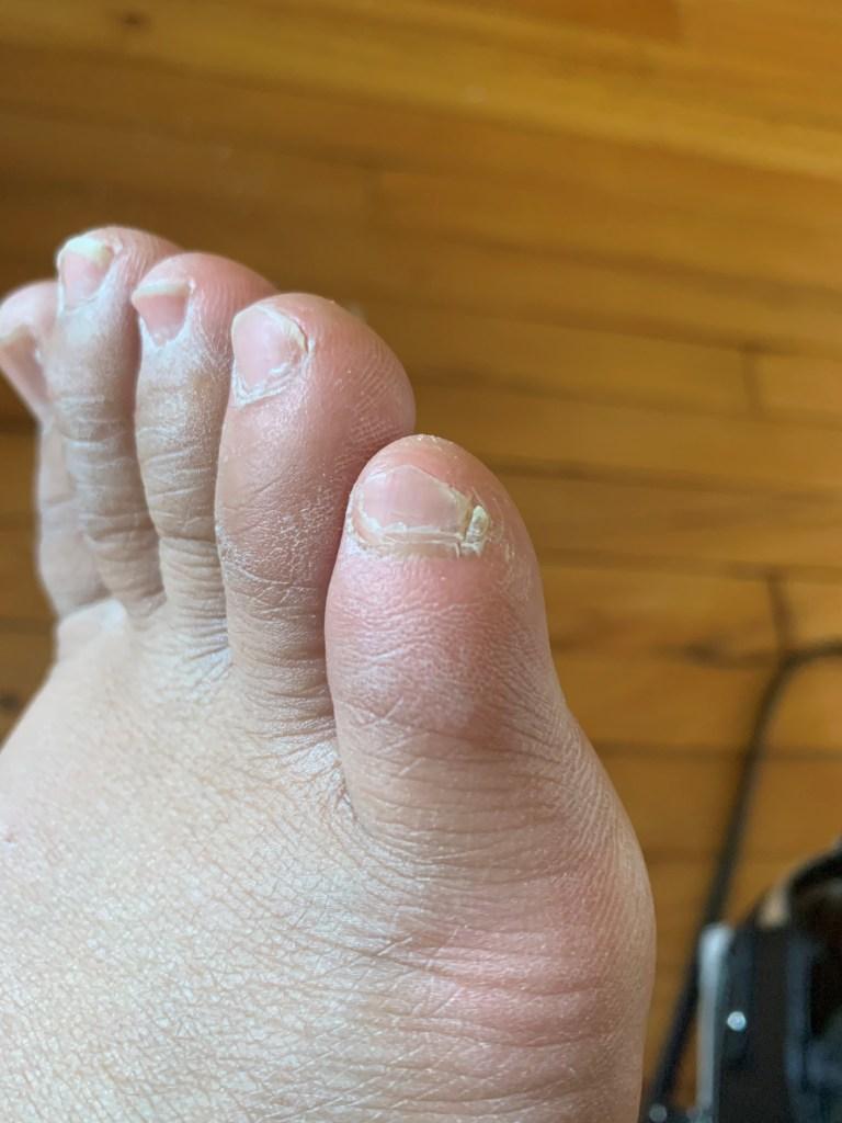 Split Pinky Toenail : split, pinky, toenail, Legends, Split, Pinky, Toenail, LivingBetweentheLines