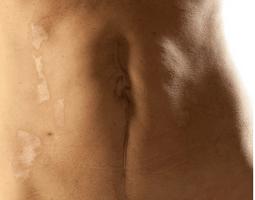 Scars closeup