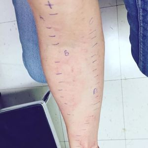 365 days of happy project - day 243 - stephanie de montigny - allergy testing cat scratches pen marks