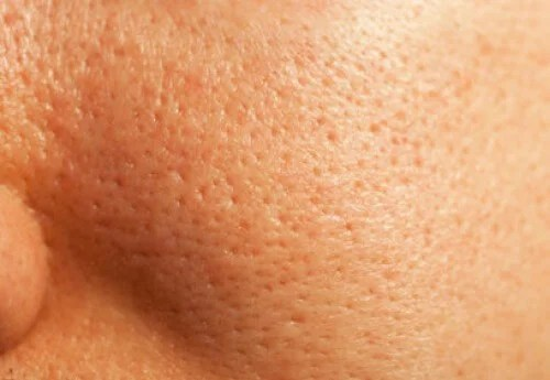 Natural Treatment For Enlarged Pores