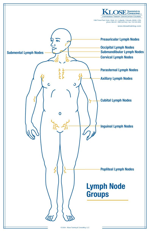 hight resolution of lymphedema stroke diagram