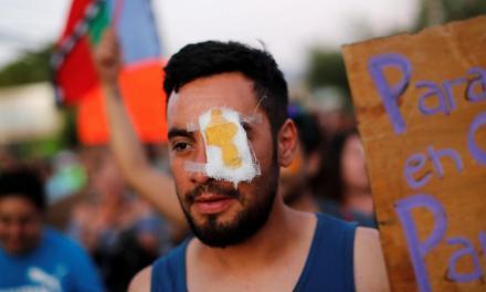 La represión en Chile deja cientos de manifestantes con heridas oculares