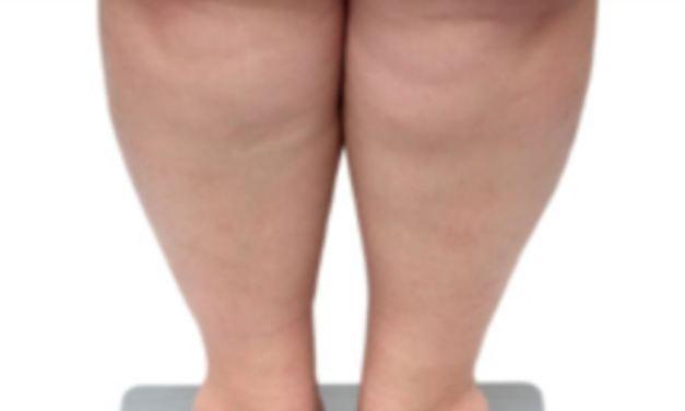 Estudio estima que la mitad de los adultos estadounidenses serán obesos para 2030