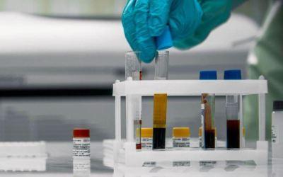 Detectan el caso de una mujer fallecida con dos variantes de Covid-19 en Bélgica